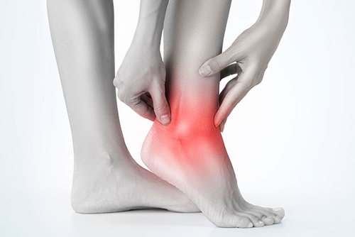 When Should I Go To The Doctor For A Rolled Ankle?